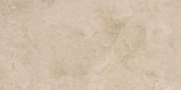 Steinoptik Braun Beige 30x60cm
